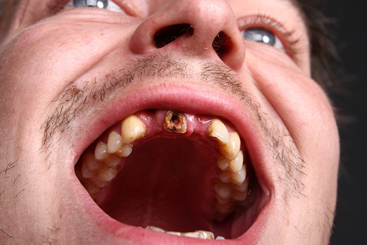 Options For Emergency Stress Fracture Tooth
