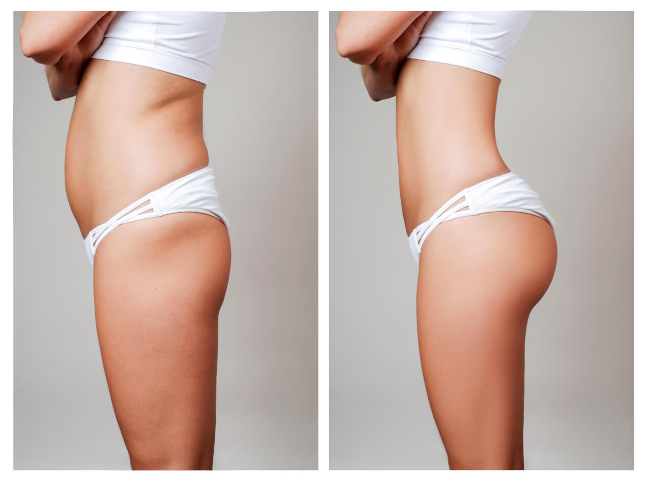 Is Liposuction Worth It? Let's Have A Look