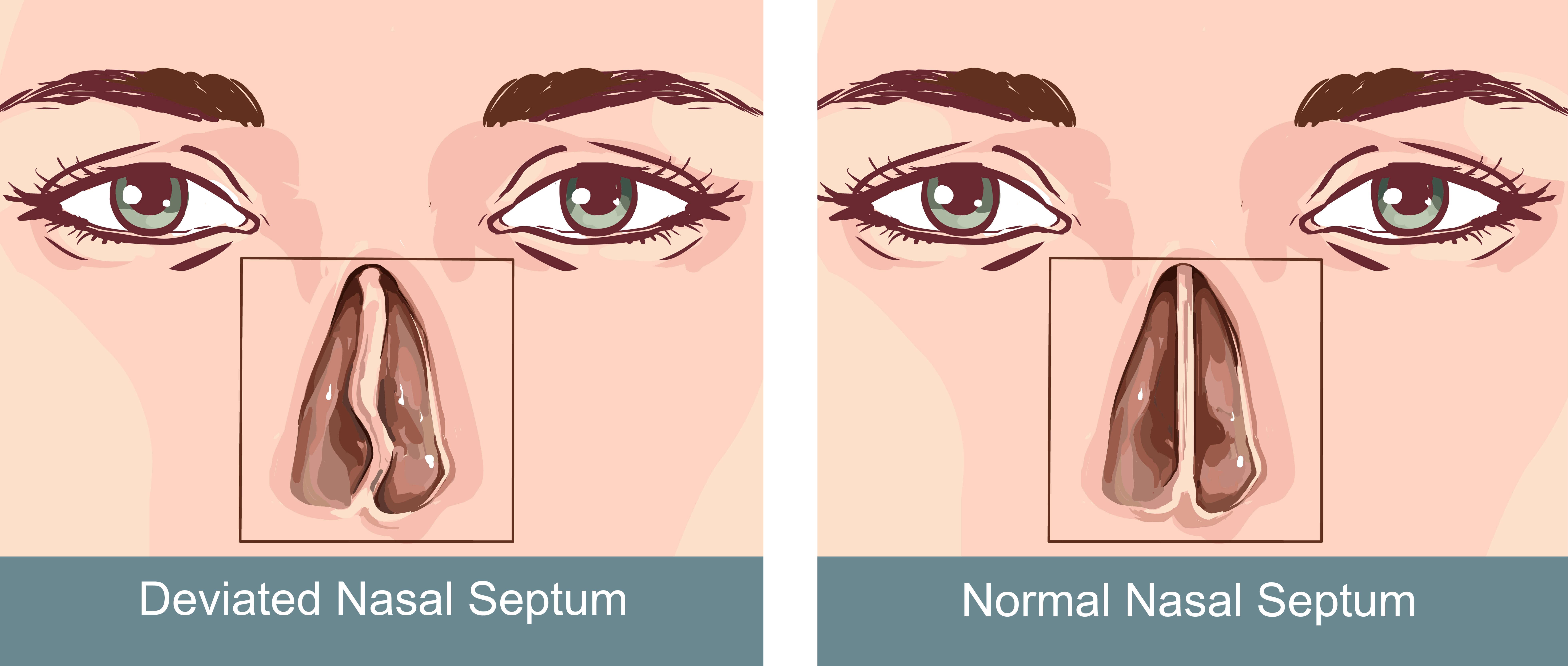How to fix a Deviated Septum