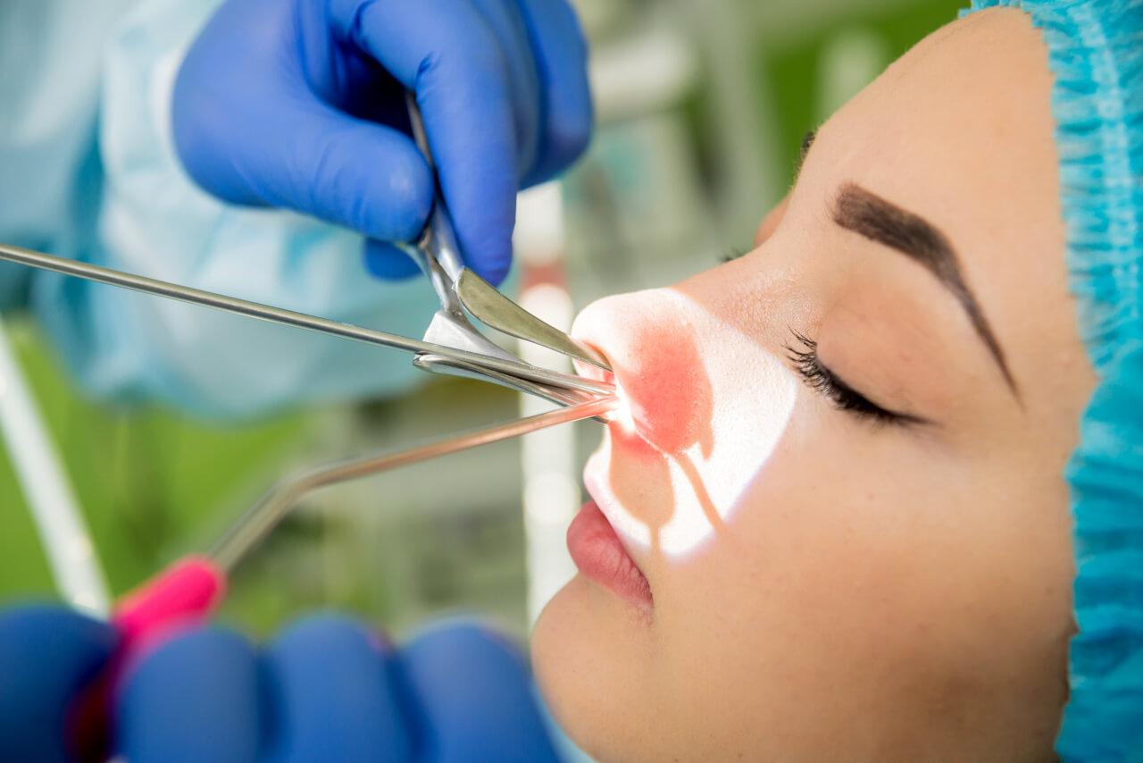 Nasal passage surgery