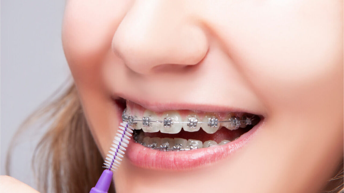 Top 4 Innovative Orthodontics Technology For The Past Decade